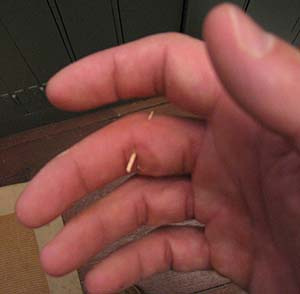 splinter through finger